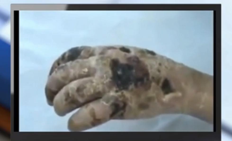 Flesh-eating Russian opiate drug called 'krokodil' arrives in Arizona