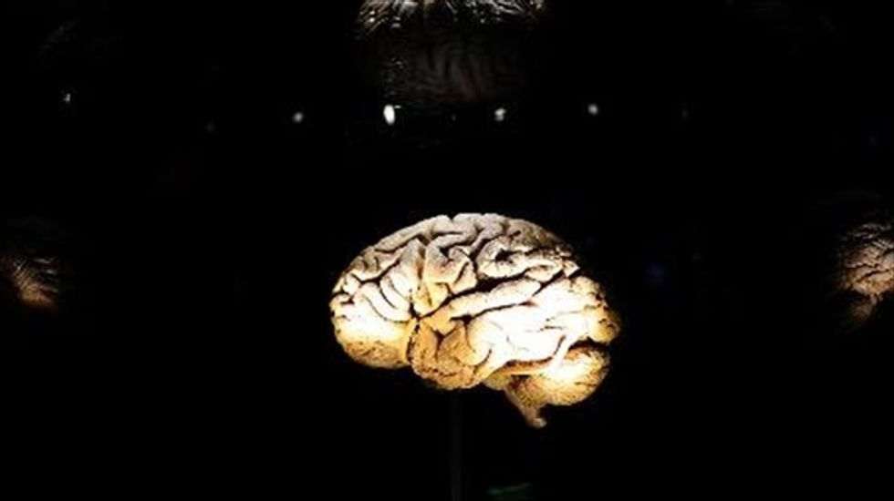 Researchers: Brain inflammation 'very common' after intensive care treatment