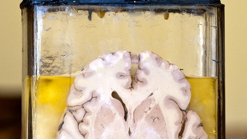 BrainStorm gets FDA fast-track status for ALS stem cell therapy