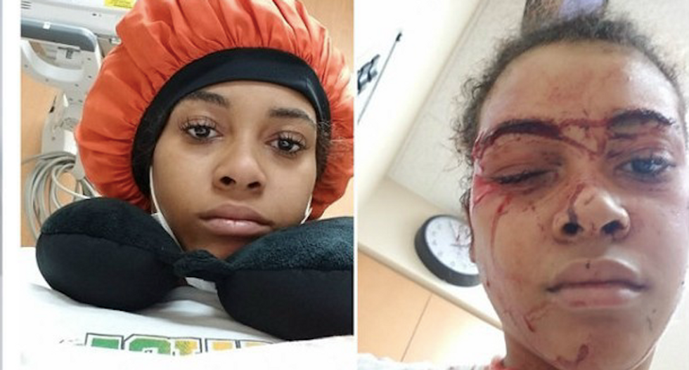 WATCH: Black woman tackled and bloodied by hospital security guard for stepping outside