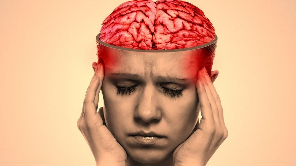Study indicates migraine sufferer's brains are 'hyper-excitable'