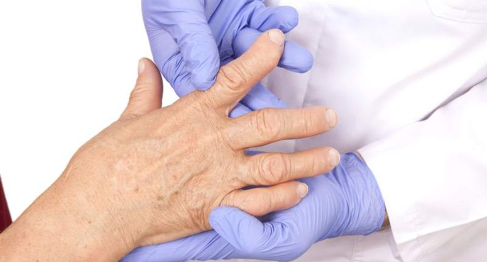 New stem-cell treatment shows promise for rheumatoid arthritis patients: report