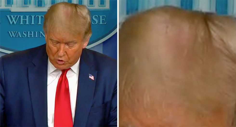 Trump's hair focus of discussion during his press conference: 'His comb-over no longer hides the bald spot'