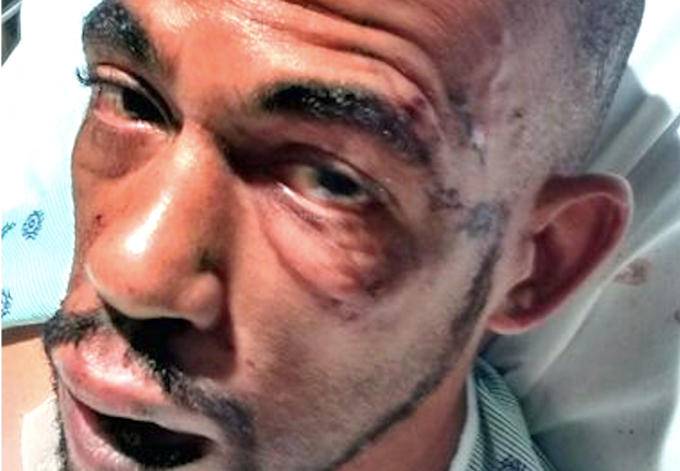 Bodycam video shows New Jersey cops assaulted black epileptic man during seizure