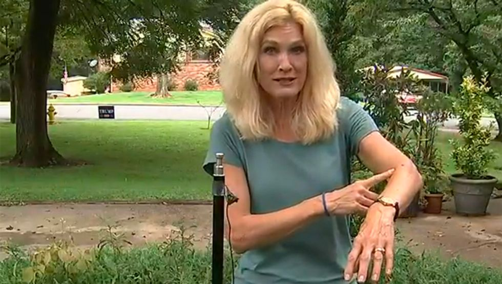 North Carolina man charged for shooting woman with a BB gun as she mistakenly grabbed his Trump lawn sign