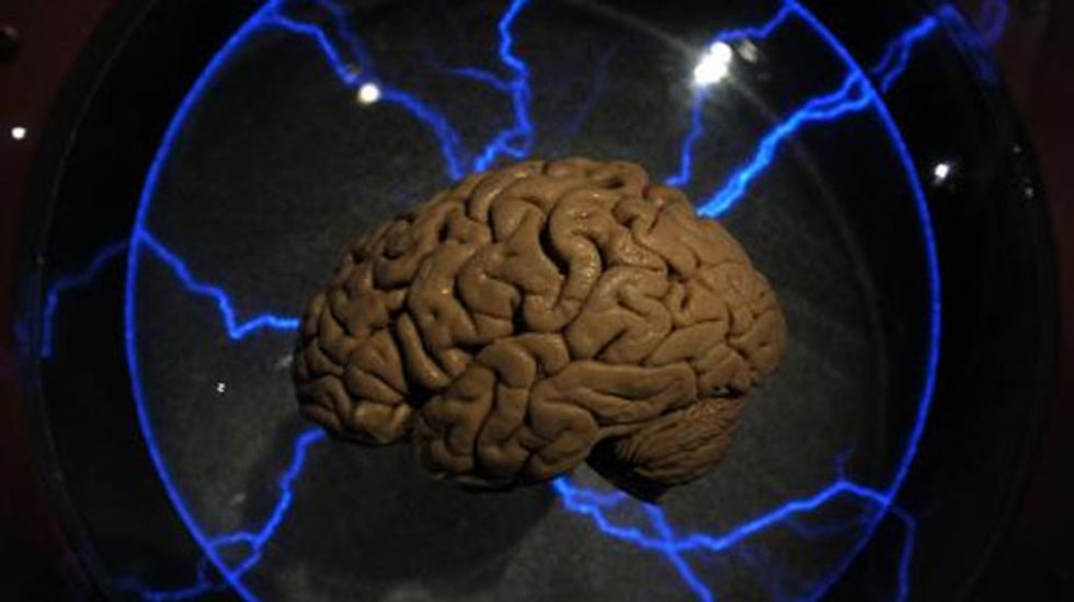 Military developing a brain implant to restore wounded soldiers' memories