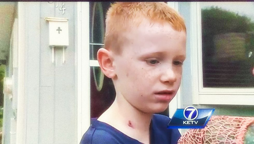 7-year-old boy wounded by celebratory bullet while watching neighborhood fireworks show
