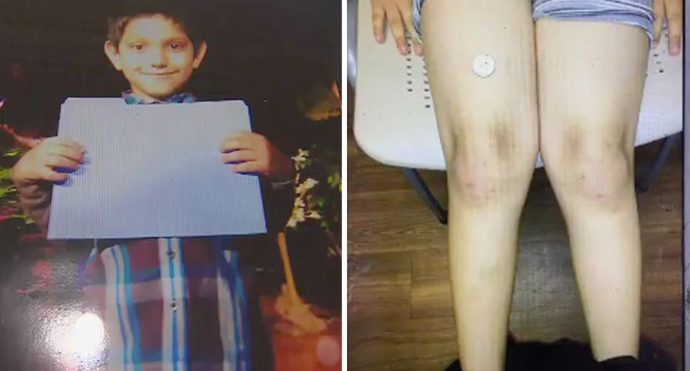Texas police used handcuffs, batons and a Taser to subdue 7-year-old special needs boy, family says