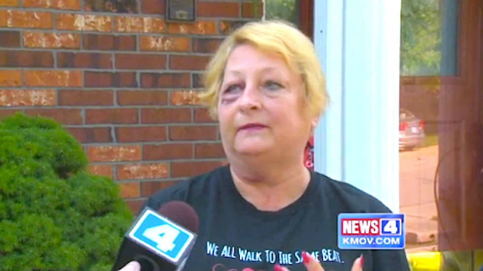 Missouri woman at July 4 celebration nearly blinded after stray bullet lodges in her face
