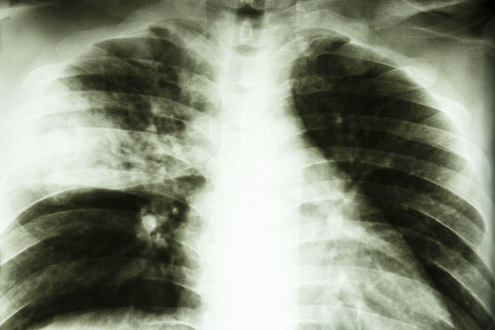 Tuberculosis kills 3 in Atlanta homeless shelters
