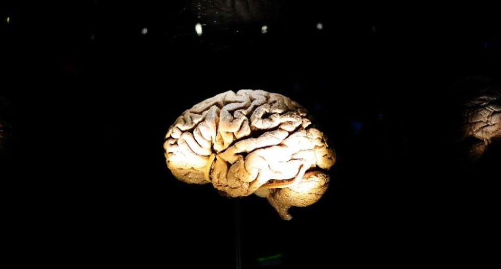 Dementia cases to nearly triple by 2050: report