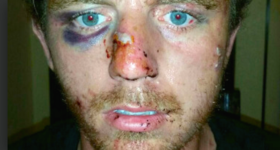 Oklahoma cop breaks man's face and charges him with assault for no apparent reason