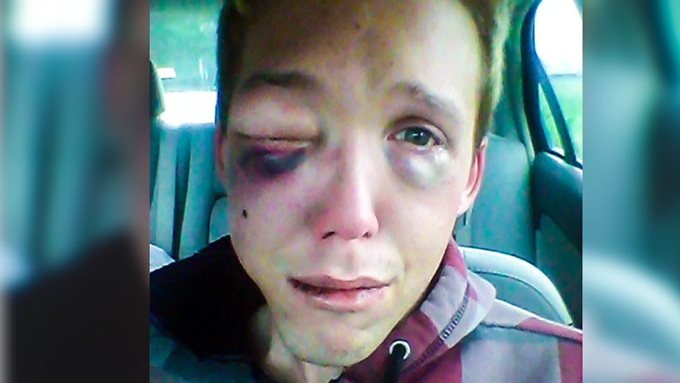 Social media pushes Miss. DA to charge hate crime after gay man called 'f*ggot,' beaten at Walmart