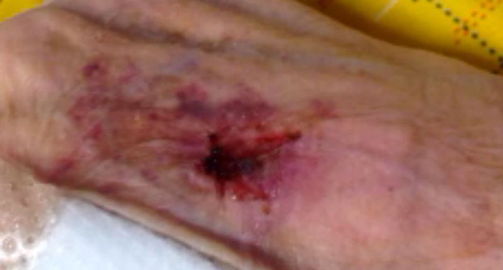 77-year-old woman suffered gruesome injuries due to alleged abuse in Georgia nursing home