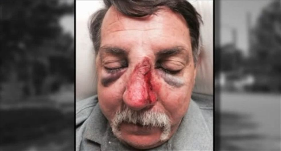 Federal marshal investigated after hitting man with his gun in road rage incident