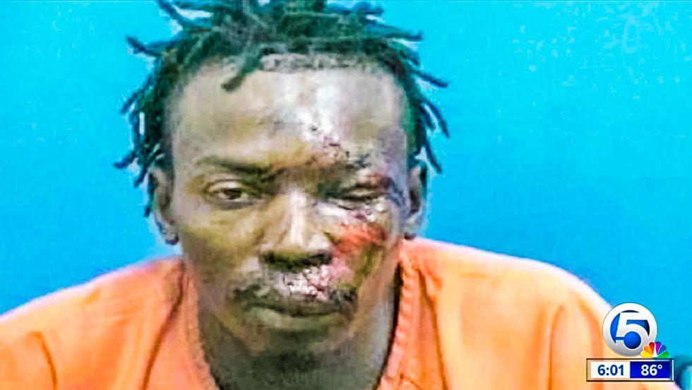 Florida sheriff: 'Absolutely no evidence' man in bloody mug shot was beaten by deputy