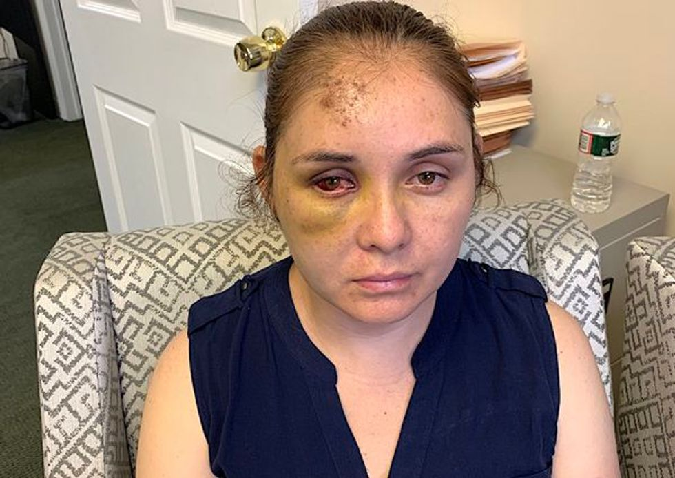 Teen brutally attacks Hispanic mother after she got him suspended by school for racist abuse of her son