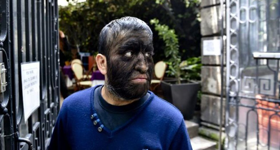 Mexican 'wolf man' battles isolation of rare condition