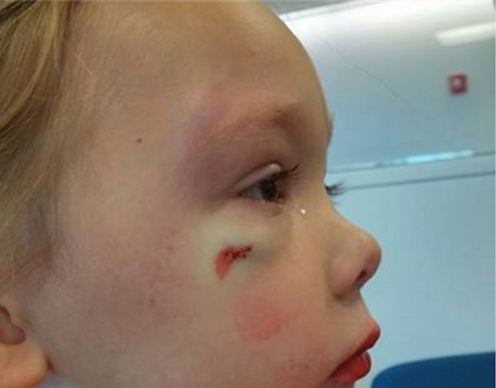 Hospital worker tells 4-year-old girl that boy who attacked her and gashed her face was just flirting