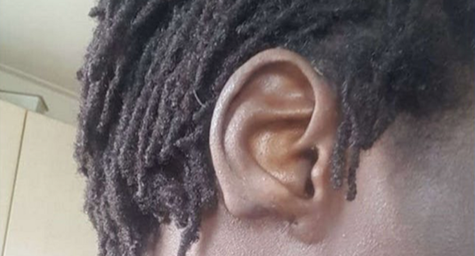 Gay man's family cut off his ear after he came out