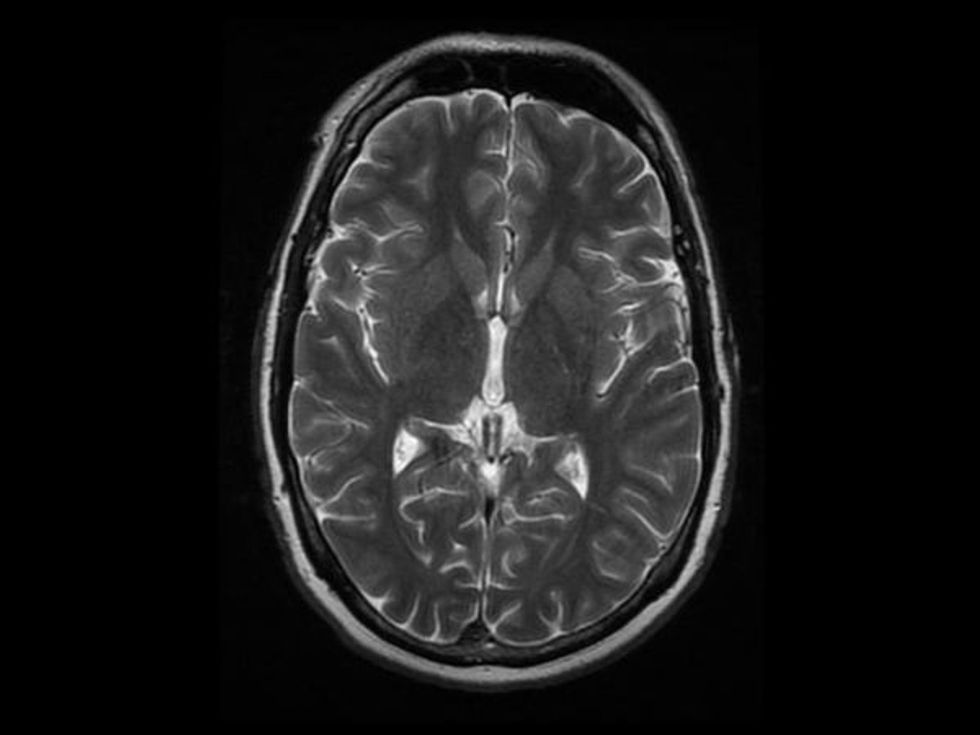 Pregnancy actually re-wires your brain
