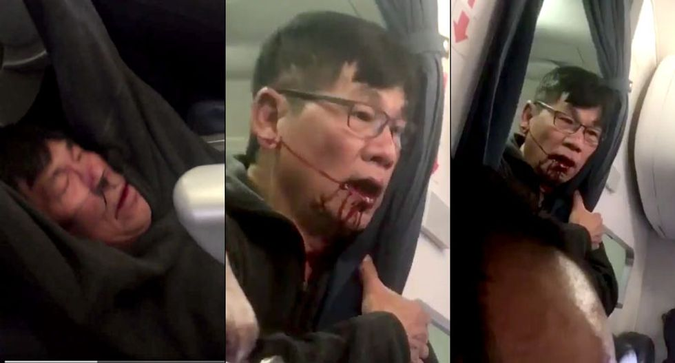 Police report blames bloodied United passenger for his own injuries