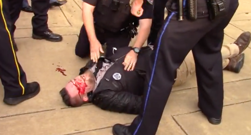 Activist bloodied in brawl at protest ahead of white supremacist's Auburn University speech