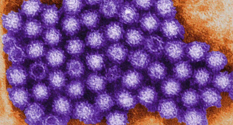 California Republican staffers in Ohio develop Norovirus symptoms