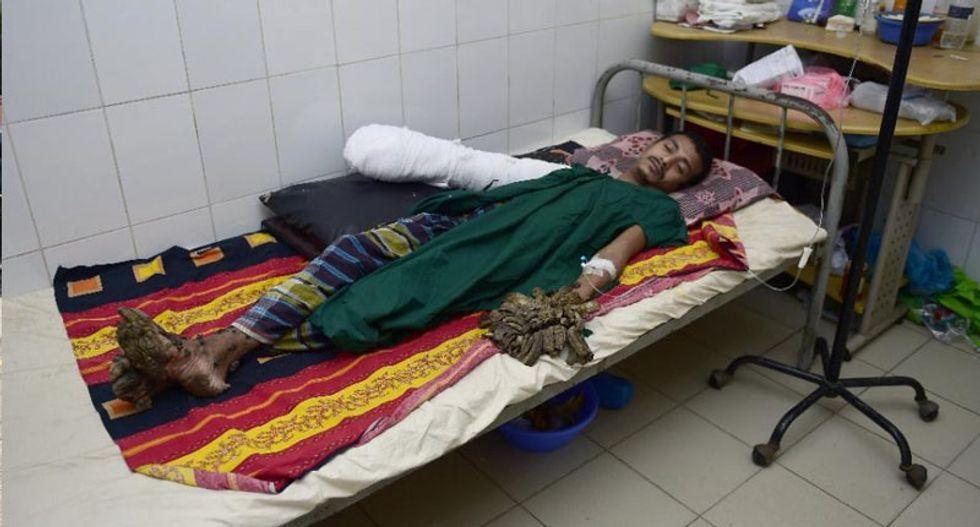 Bangladesh's 'Tree Man' may need dozen more operations