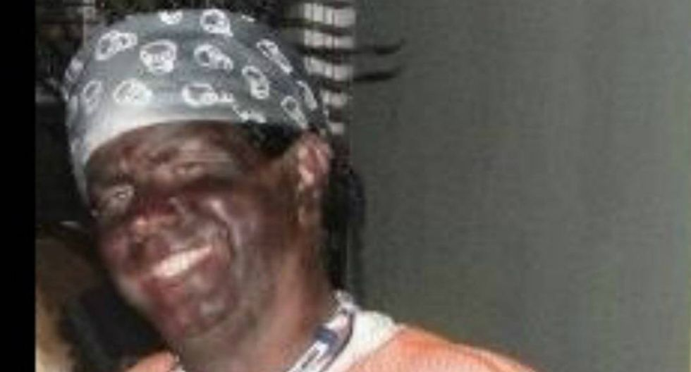 Illinois GOP candidate caught in blackface – but he insists he has black friends