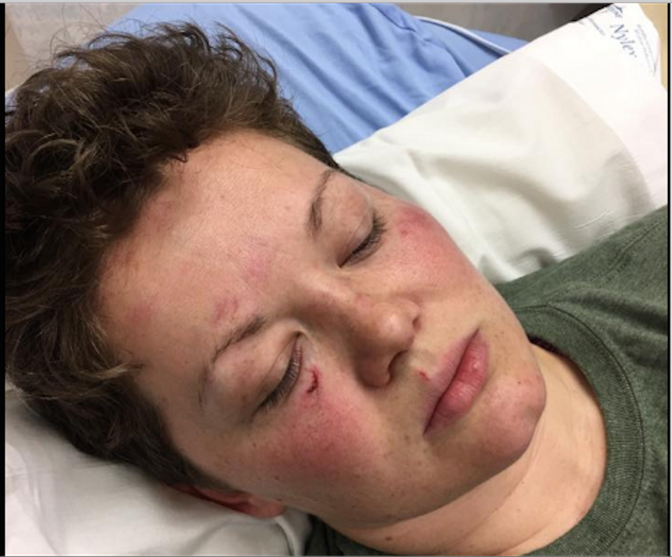 Kentucky woman says man beat her for looking too masculine -- as people stood by and watched