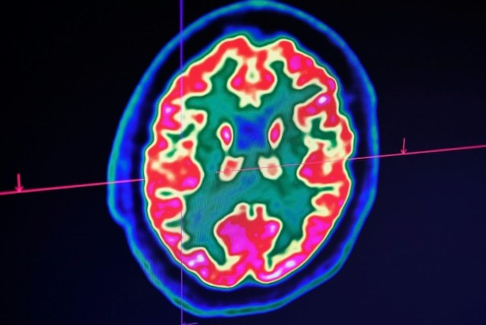 Confusion, seizure, strokes: How COVID-19 may affect the brain