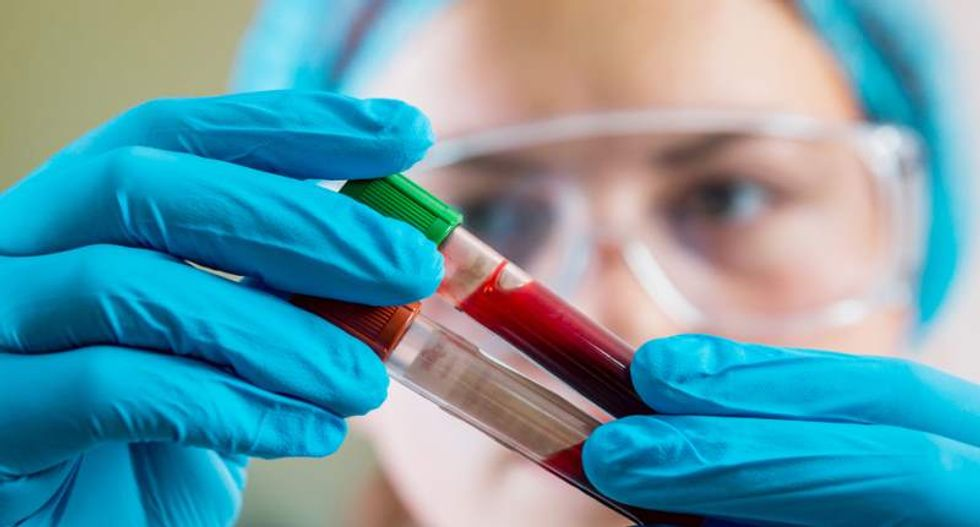 Checking blood for coronavirus antibodies – 3 questions answered about serological tests and immunity