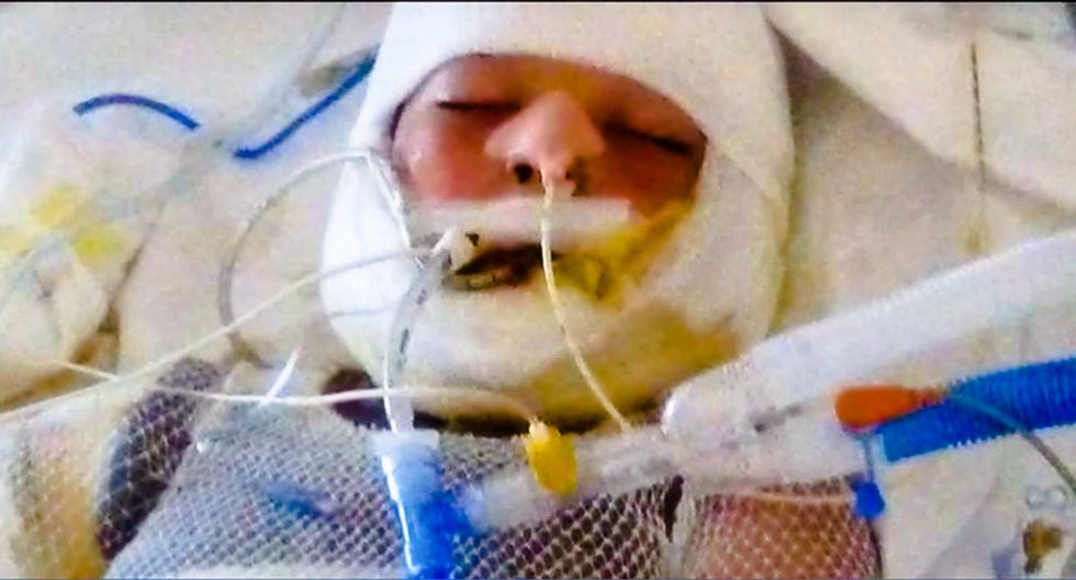 10-year-old special needs child in coma after being doused with gas and set on fire by bullies