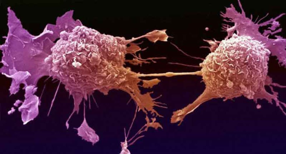Americans overpaying hugely for cancer drugs - academic study