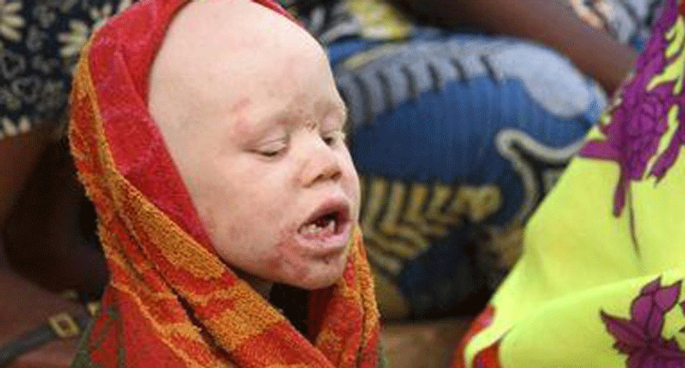 Tanzania bans witchdoctors to stem grisly albino murders