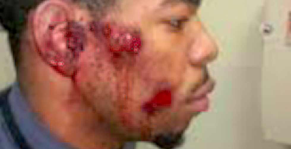 St. Louis cops apologize for beating wrong black man bloody in chase after suspect