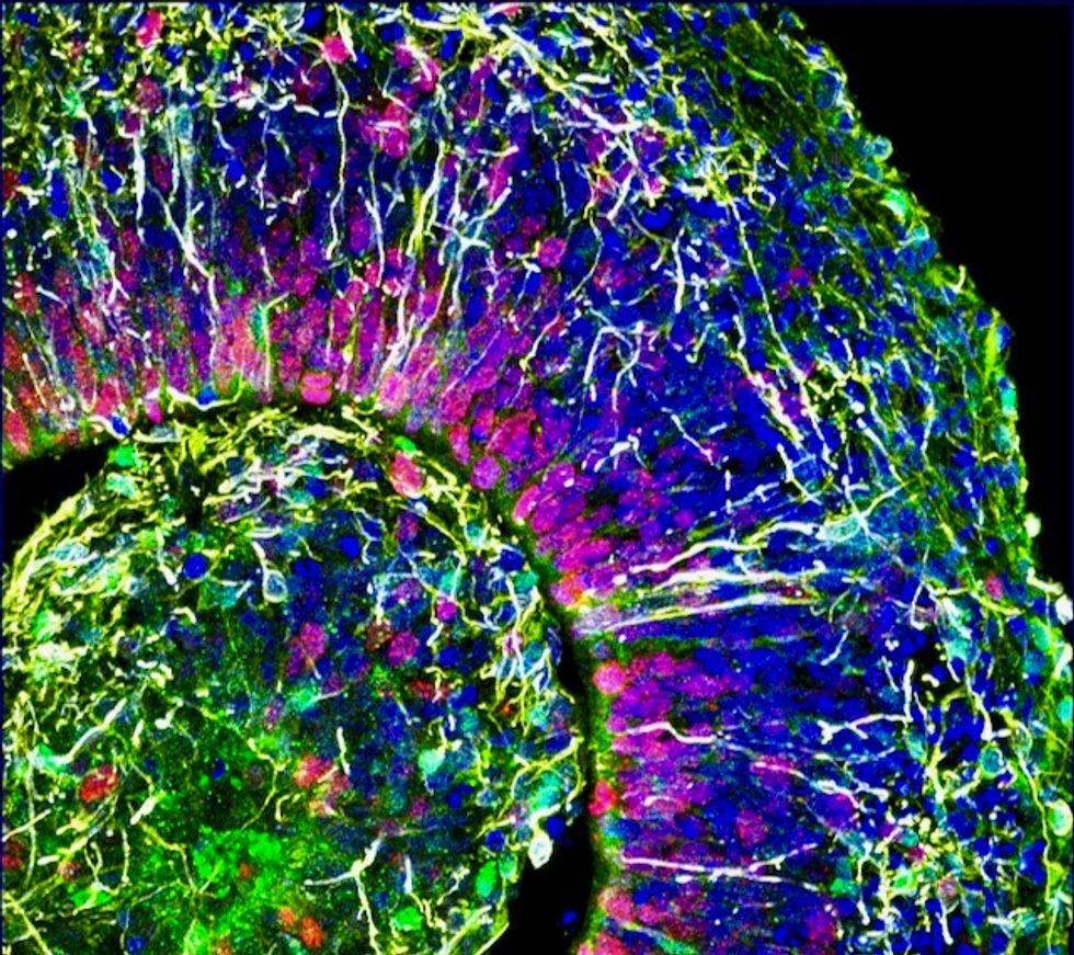 Human-like neural activity detected in lab grown mini brains