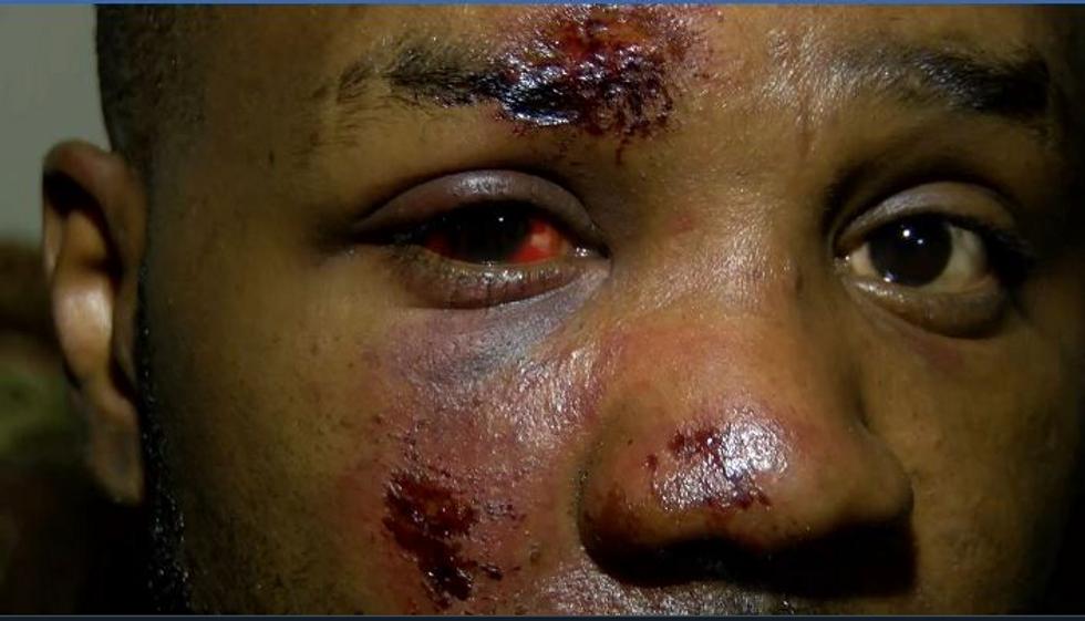 'I've never been so afraid': Black Mississippi man demands 'justice' action after being beaten by police
