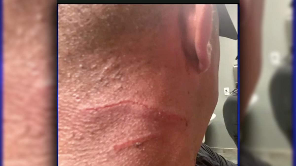 Miami women slash man after he claimed Ron DeSantis said he didn't have to wear a mask