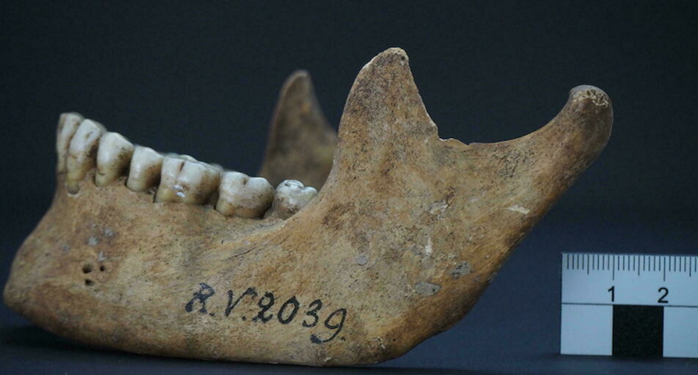Hunter-gatherer died from plague 5,000 years ago