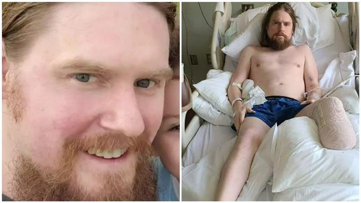 Unvaccinated man thought he was 'in a low-risk situation' – then he lost his leg to COVID-19
