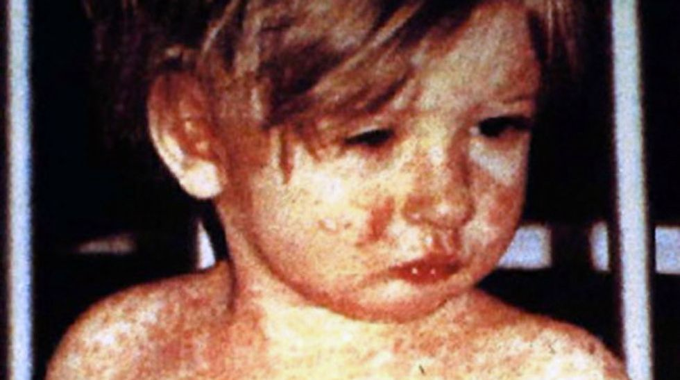 Sick privilege: Wealthy anti-vaxxers are driving outbreaks of deadly 19th century diseases