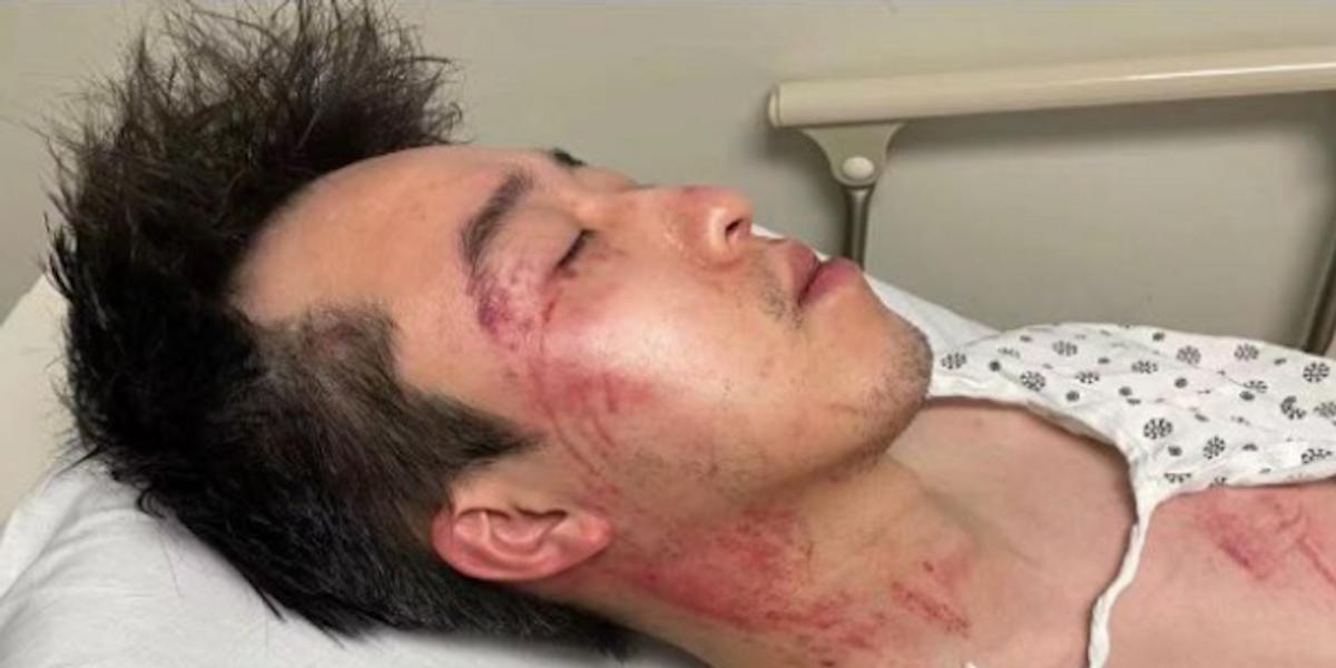 www.rawstory.com: Asian-American man viciously beaten in terrifying encounter caught on video