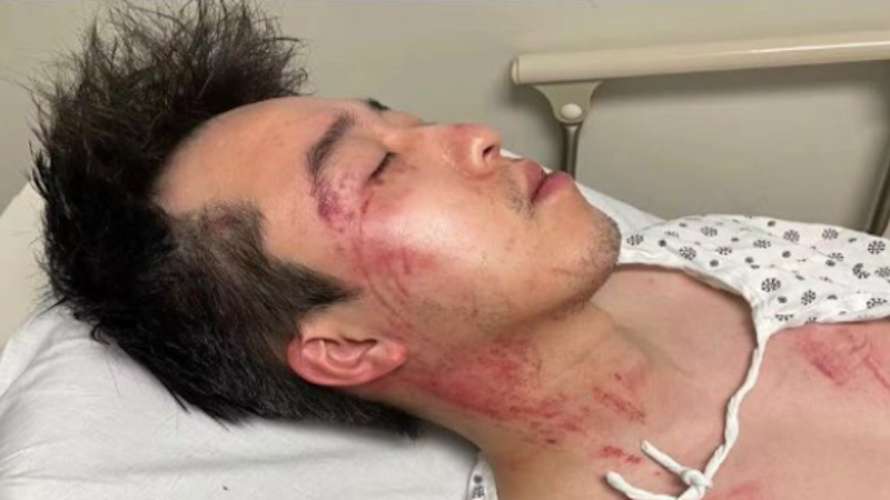 Asian-American man viciously beaten in terrifying encounter caught on video